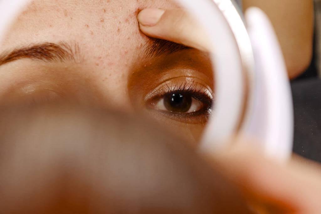 Eine Frau schaut sich ihre Pickel im Spiegel an.