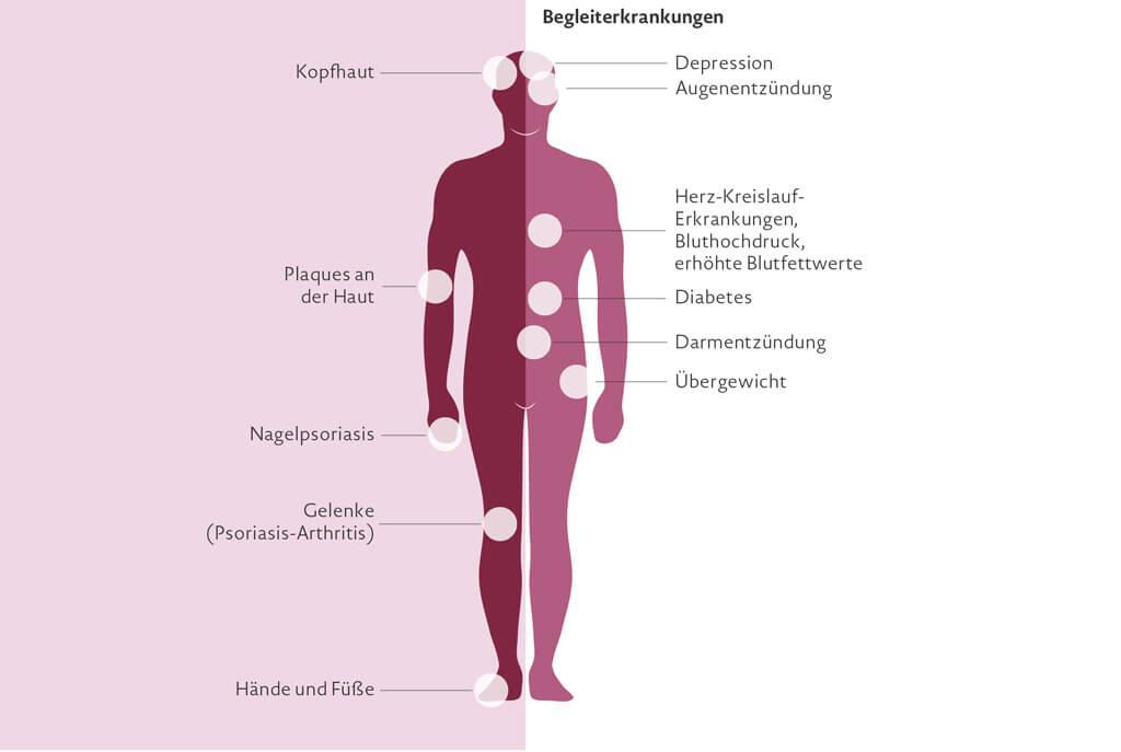 Schuppenflechte ist eine chronisch-entzündliche Hautkrankheit