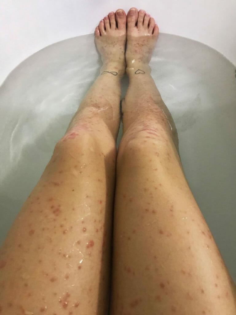 Germaine zeigt Ihre Beine während einem Schub der Psoriasis.