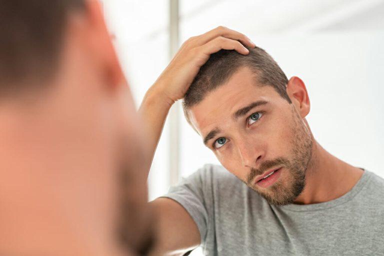 Ein junger Mann schaut sich im Spiegel seine Kopfhaut an.